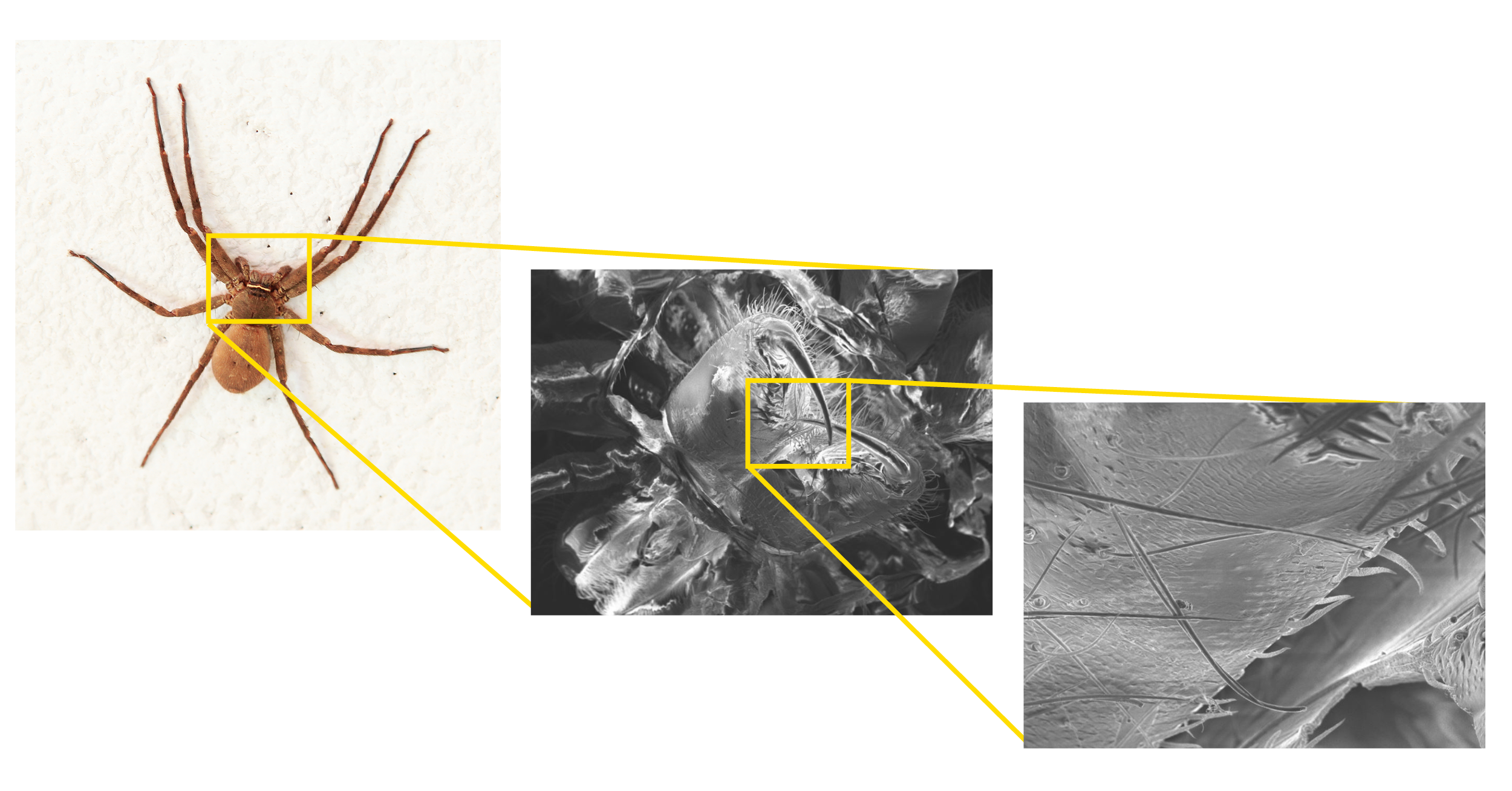 An image of a house spider under observation in a scanning electron microscope (SEM) at various magnifications.